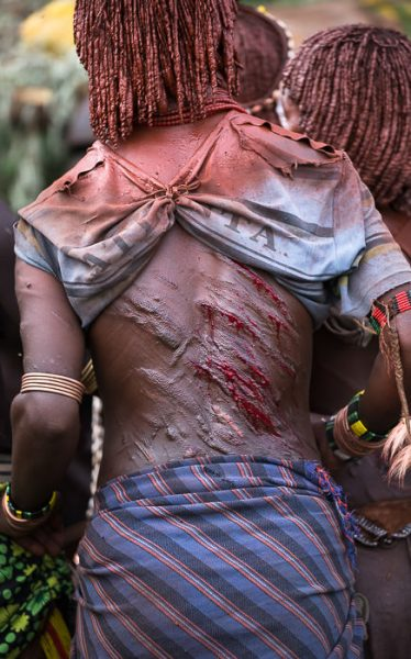 Fresh and bleeding wounds on a Hamer woman's back, incurred at Hamar Bull Jumping Ceremonies. South Omo Part 2 - GreatDistances / Matt Wicks